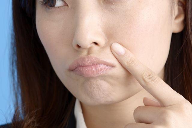 【去痘印懒人包】一文分清暗疮印类型!8款好用去印产品推荐!击退暗疮印、修复肌肤!